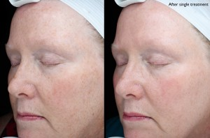 Fraxel Dual (single treatment)