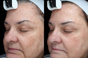SRA photofacial treatment