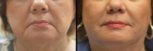 Juvederm & Voluma for lower face rejuvenation