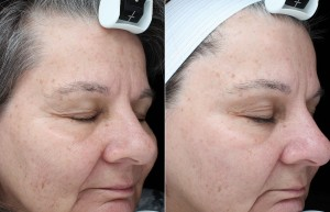 Photofacial treatment for lentigos